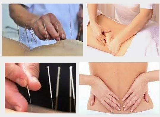 Châm cứu chữa trị mỏi lưng