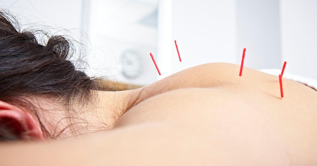 Bị đau vai gáy có cần châm cứu không?