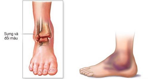 Triệu chứng nhận biết bệnh viêm khớp cổ chân