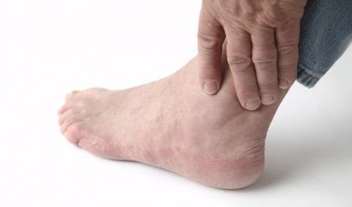 Viêm khớp cổ chân bắt buộc ăn gì?