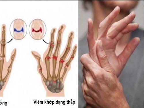 Dấu hiệu bệnh viêm xương khớp dạng thấp