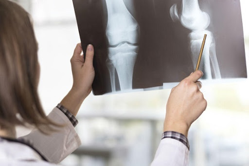 Nguyên nhân cũng như dấu hiệu nhận biết đau xương bánh chè