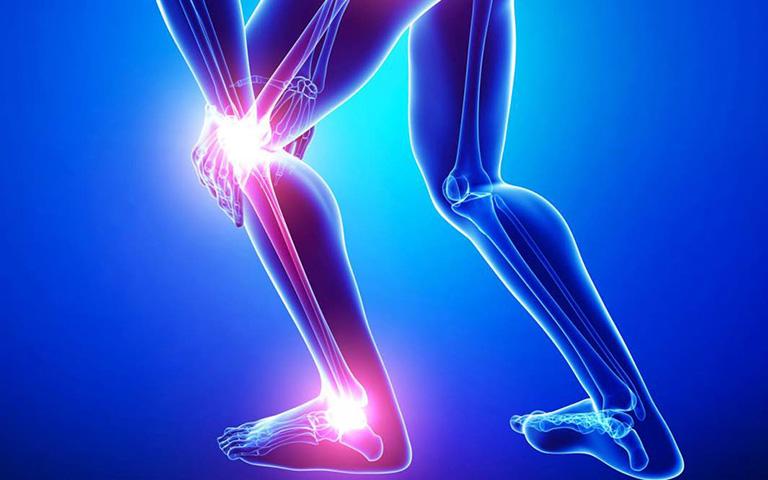 Giải pháp ngăn ngừa đau xương bánh chè