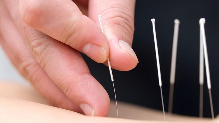 Biện pháp bớt đau, chữa trị viêm khớp gối tự nhiên