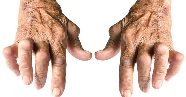 Bệnh viêm khớp dạng thấp có di truyền không