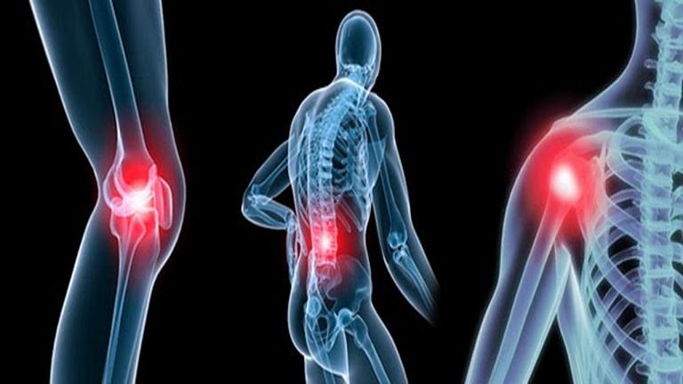 Đau nhức xương khớp toàn thân