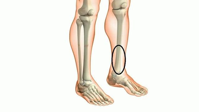 Nguyên nhân Đau nhức trong xương ống chân