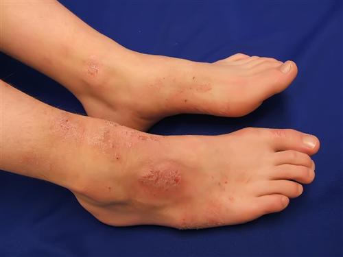 Cách nhận biết dấu hiệu viêm da cơ địa ở chân
