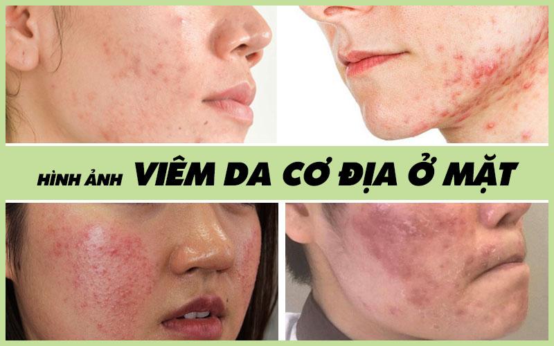 Nguyên nhân bị Viêm da cơ địa ở mặt