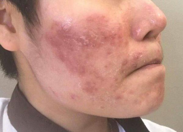 Biến chứng của bệnh viêm da cơ địa ở mặt