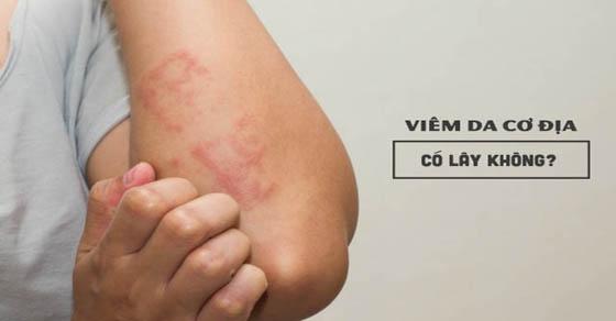 Bệnh viêm da cơ địa có lây không?