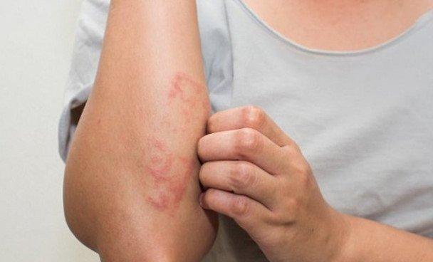Cách chữa viêm da cơ địa ở người lớn