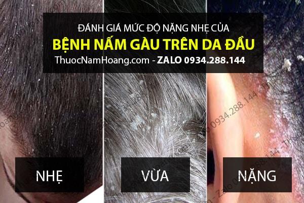 Thuốc điều trị gàu nấm da đầu Đông y Nam Hoàng có công dụng gì?
