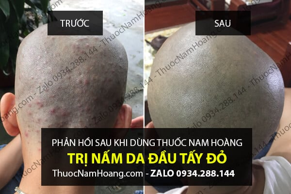 Cách sử dụng Thuốc trị gàu nấm da đầu Đông y Nam Hoàng