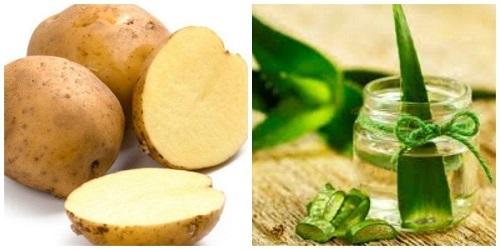 khoai tây và lô hội tẩy lông chân