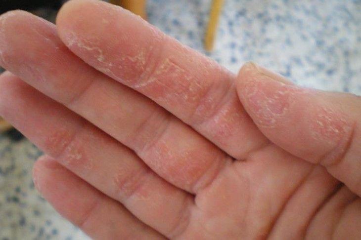 viêm da đầu ngón tay