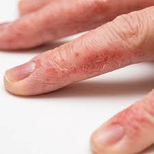 nguyên nhân bị viêm da đầu ngón tay