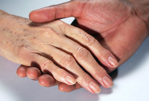 xuất hiện đốm nâu trên da tay