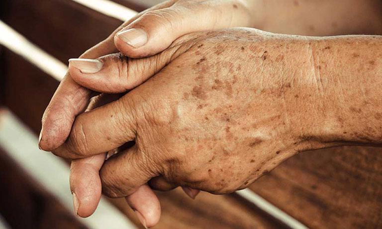 Cải thiện chứng trạng tay nổi đốm nâu trên da
