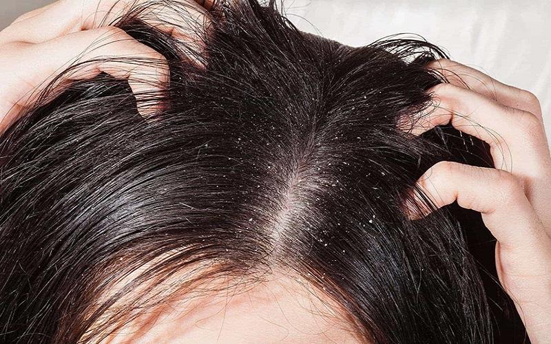 nguyên nhân nấm da đầu