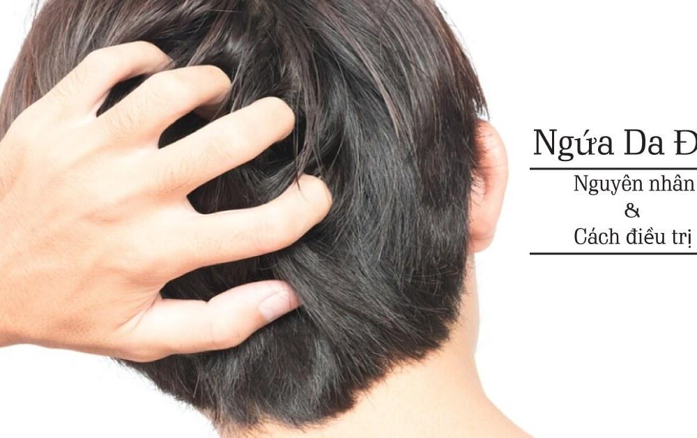 Ngứa da đầu và rụng tóc là căn bệnh gì