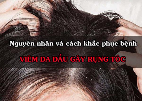Da đầu ngứa cũng như rụng tóc uống thuốc gì?