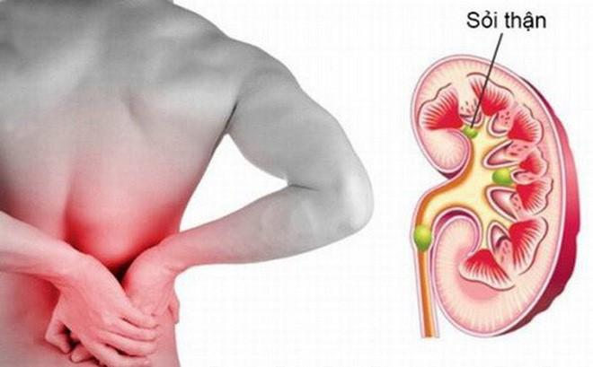 Cây từ bi chữa sỏi thận thể trạng nặng