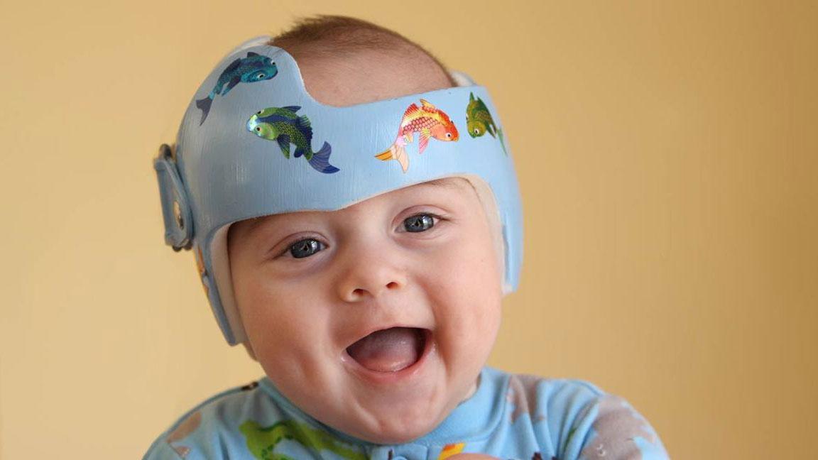 Cranial Helmet a child