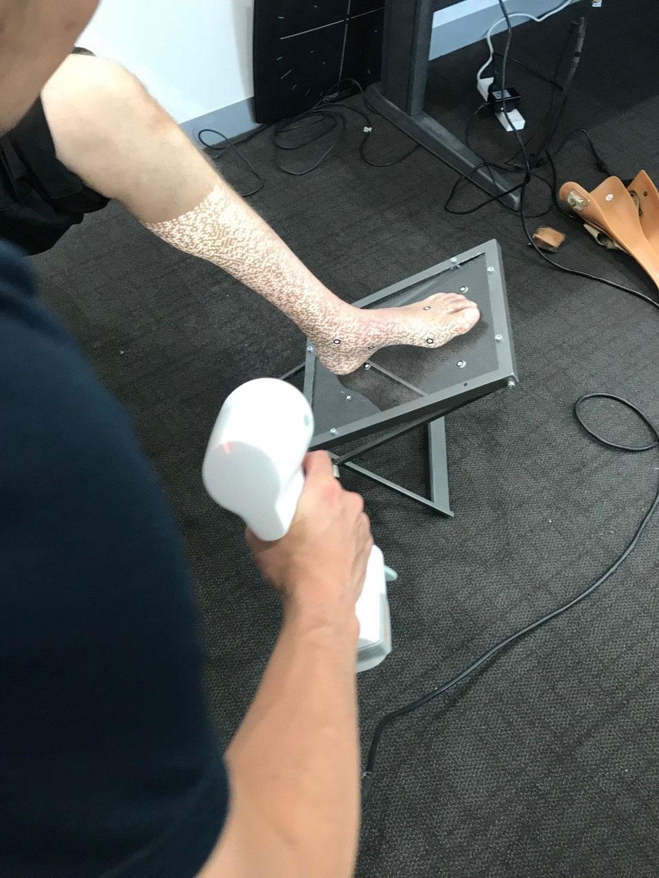 OMEGA 3D High Definition Scanner used for AFO shape capturing: