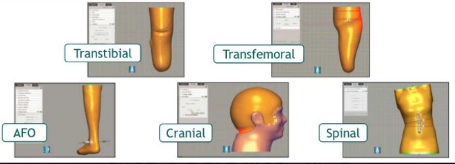 OMEGA orthotic and prosthetic applications: