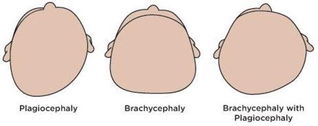 plagiocephaly brachycephaly