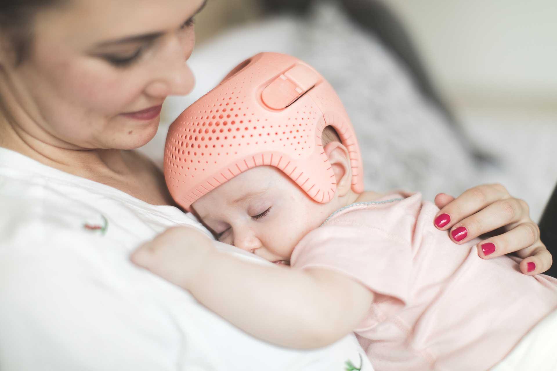plagiocephaly helmet baby pink