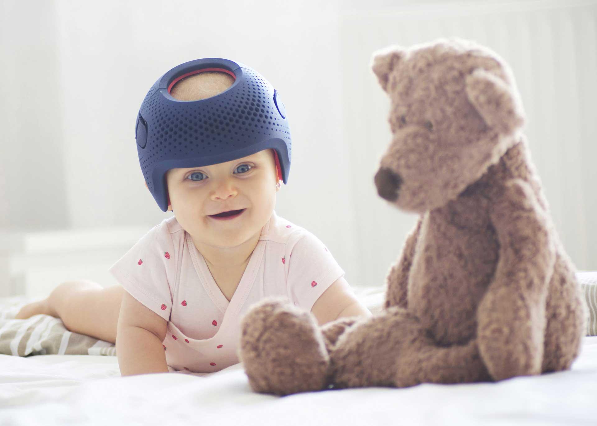 cranial helmet cute plagiocephaly melbourne