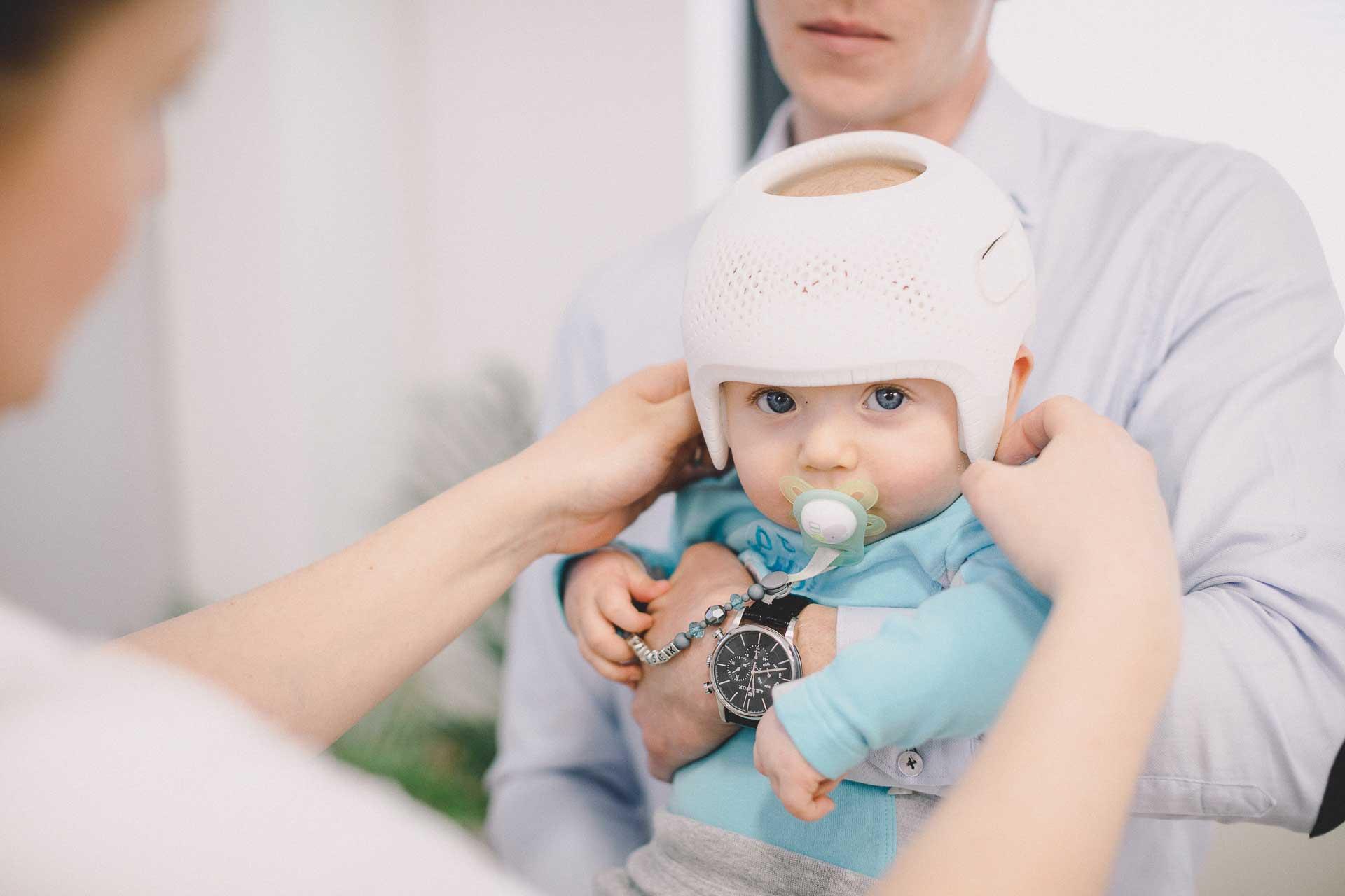 plagiocephaly helmet melbourne baby