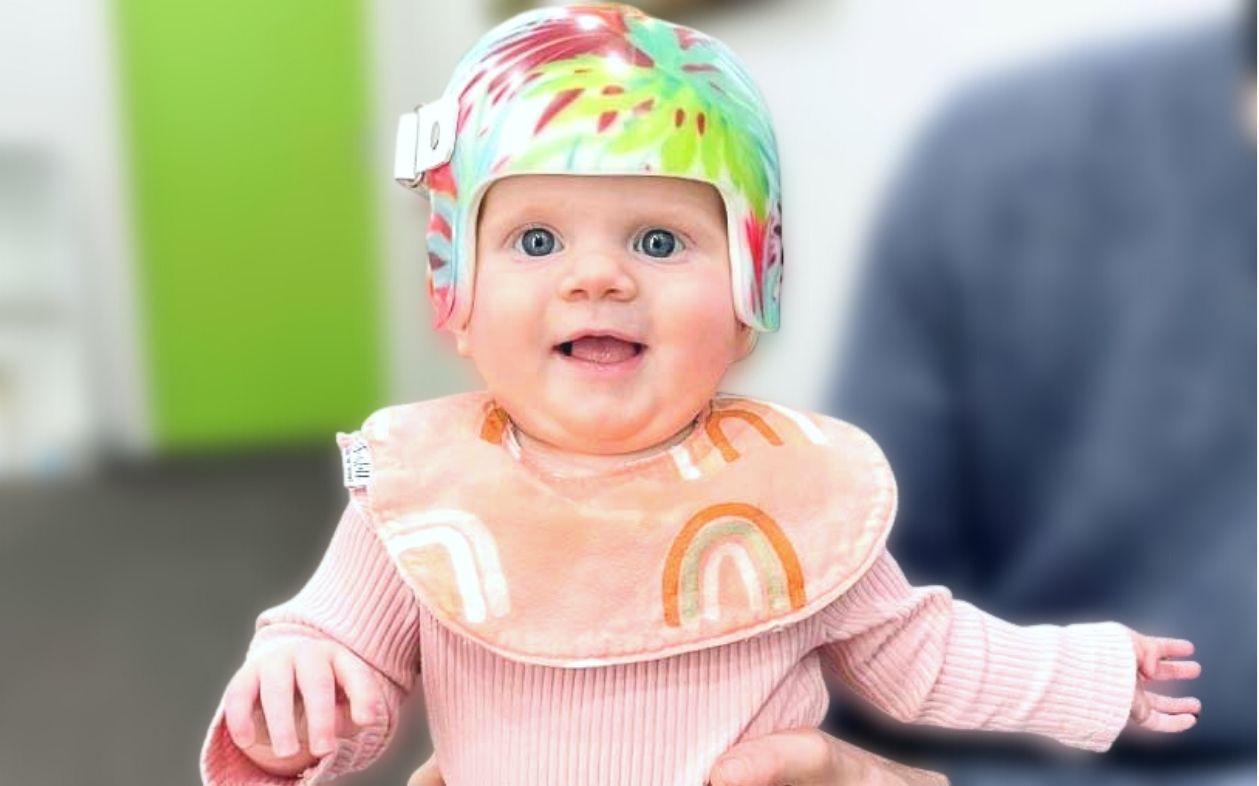 Plagiocephaly cranial helmet Melbourne Australia