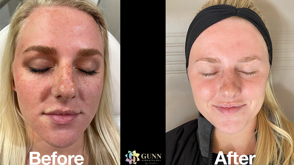 Want to Remove Years of Damage from Your Skin?