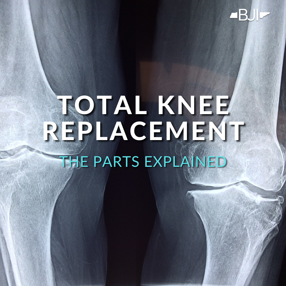 Total Knee Replacement: The Parts Explained