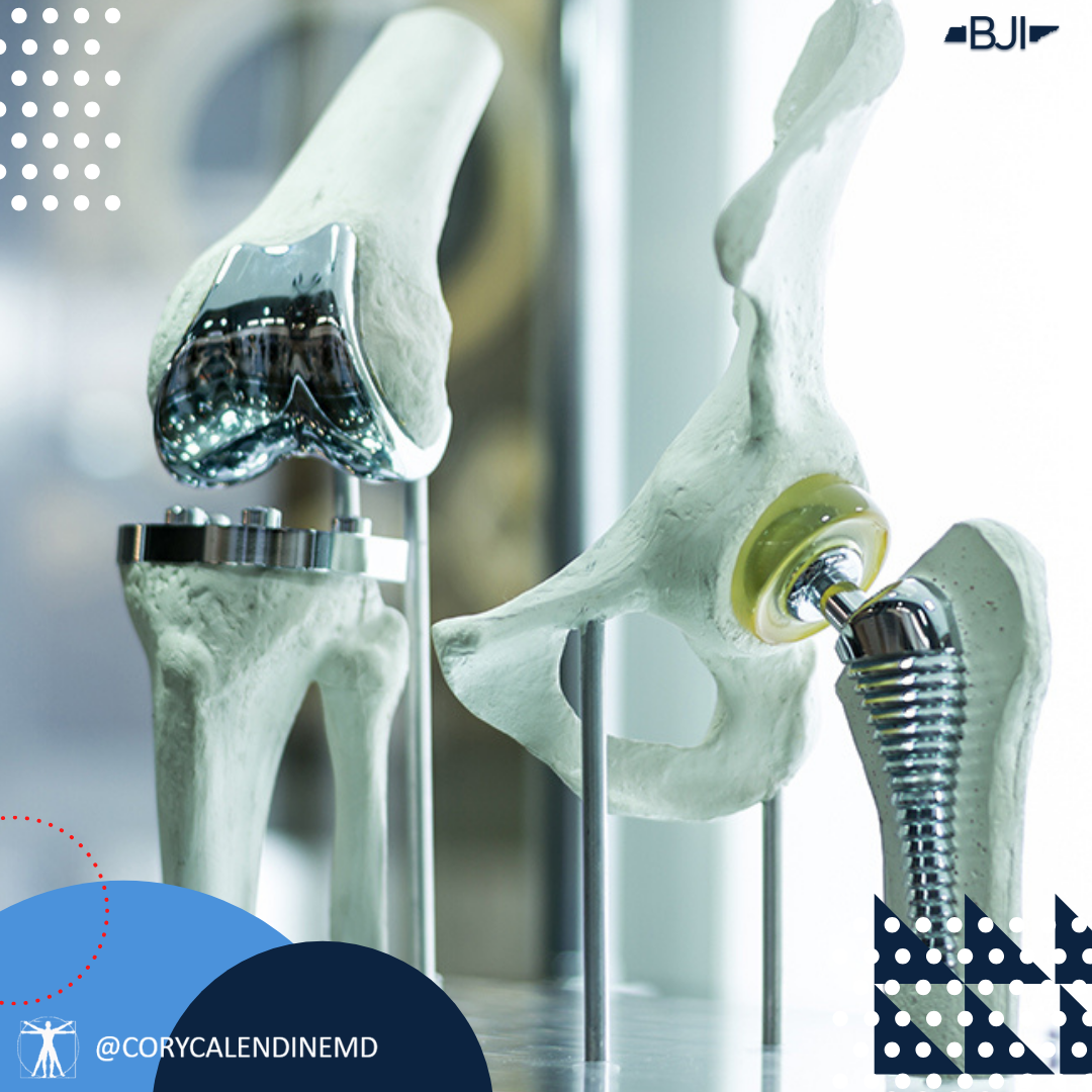 Glue and Knee Replacement