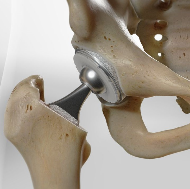 MAKO Robotic-Assisted Total Hip Replacement