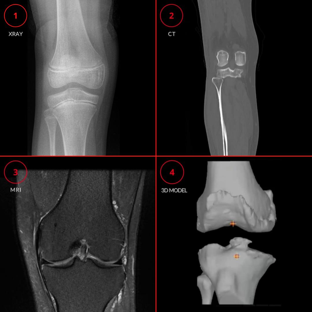 Bone and Joint Imaging Comparison: Xray, CT, MRI