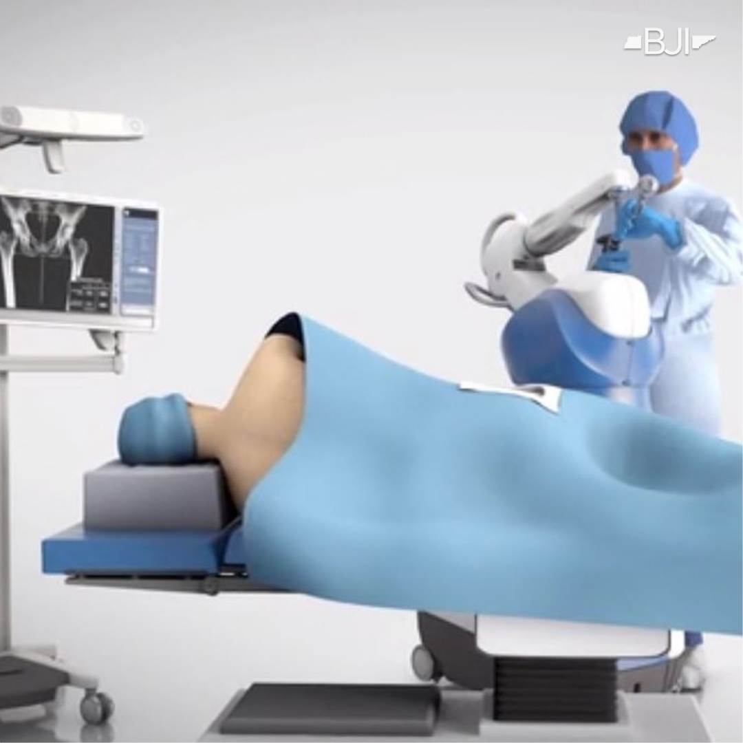 Robotic-Assisted Hip Replacement Advantages