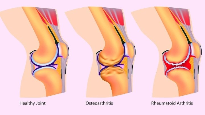 Illustration of normal knee, osteoarthritis and rheumatoid arthritis changes in the knee