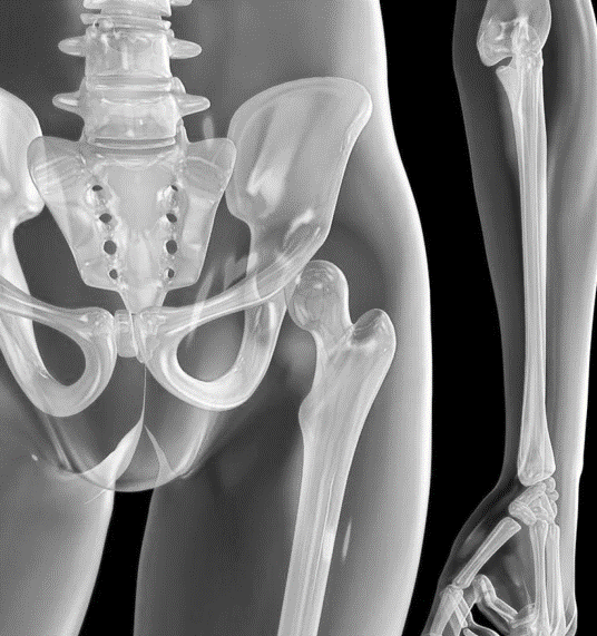 xray image of human hip and skeleton