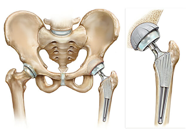 artificial hip replacement anatomy