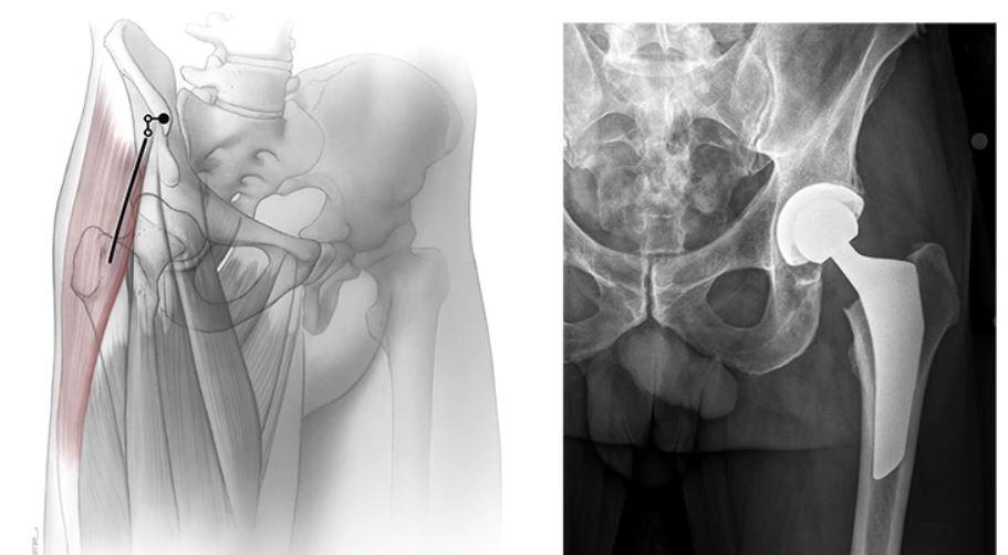 hip replacement radiograph