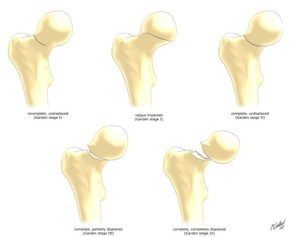 femoral neck fracture classification diagram