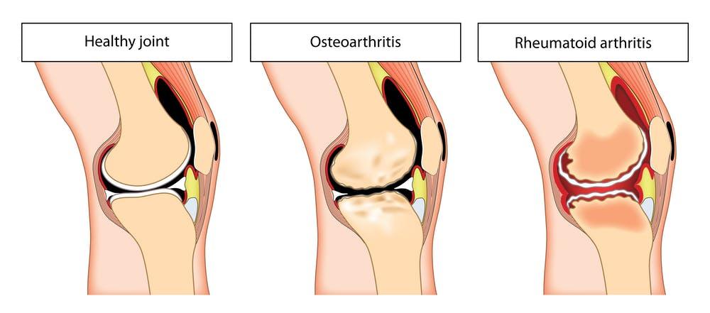 osteoarthritis and rheumatoid arthritis diagram