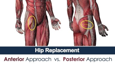Posterior Hip Replacement Incision Diagram