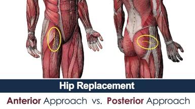 Posterior Hip Replacement Incision Diagram
