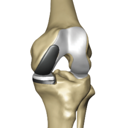 Partial Knee Replacement Illustrion